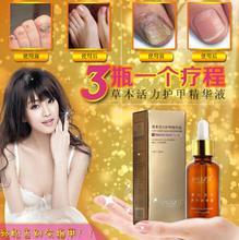 Medicine herbaceous regeneration Nail fungus treatment gel nail polish TOE fungal nail art care For nail