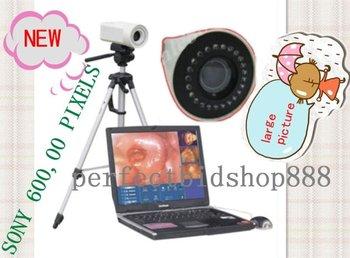 Brand New Portable Digital Electronic colposcope Endoscope