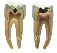 Dental Caries Model / Teeth Model