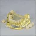 1 Set  Dental Study Teaching Model Teeth Implant Model ZL2010-I Free Ship(China (Mainland))