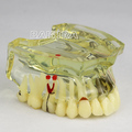 New dental teeth study implant model Bridge and Caries #2006