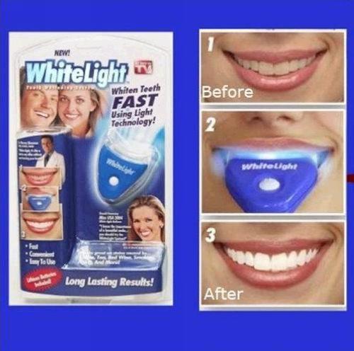 Teeth Whitening Tetracycline Staining Teeth Tetracycline Stained