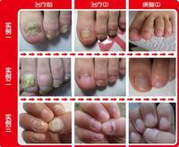 makeup nail polish  nail fungus  nail fungus treatment