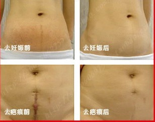 supernova sale 2013 Powerful to stretch marks essential oils postpartum repair scar product , obesity drawing abdomen cream(China (Mainland))