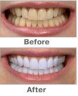 new 2014 oral hygiene Products teeth whitening teeth whitening pen for personal care as seen tv