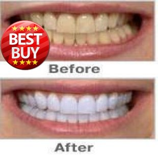 Biggest promotion 1pcs HIGH STRENGTH BLEACHING TEETH WHITENING TOOTH WHITENER GEL PEN STRONG WHITE   DHL SHIPPING